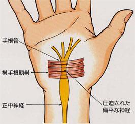 骨粗鬆症による圧迫骨折の図
