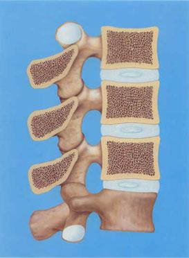 正常の骨の図