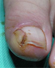 まき爪手術1