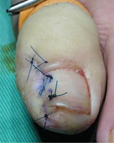 まき爪手術2